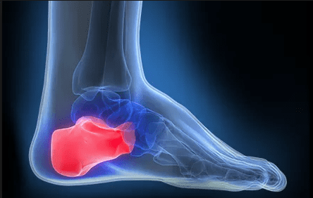 Pain in the Foot